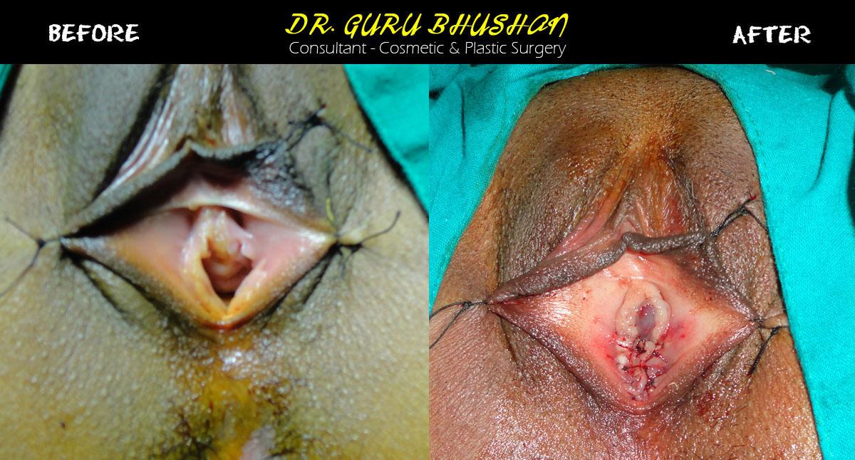 Reconstructive surgery virginity