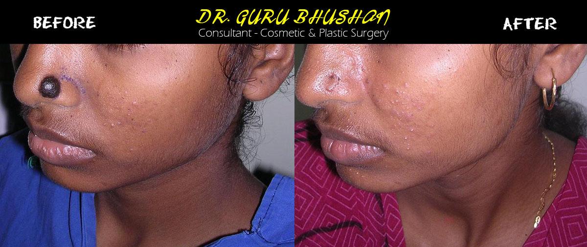 Mole Excision   Dr GuruBhushan - Consultant - Cosmetic