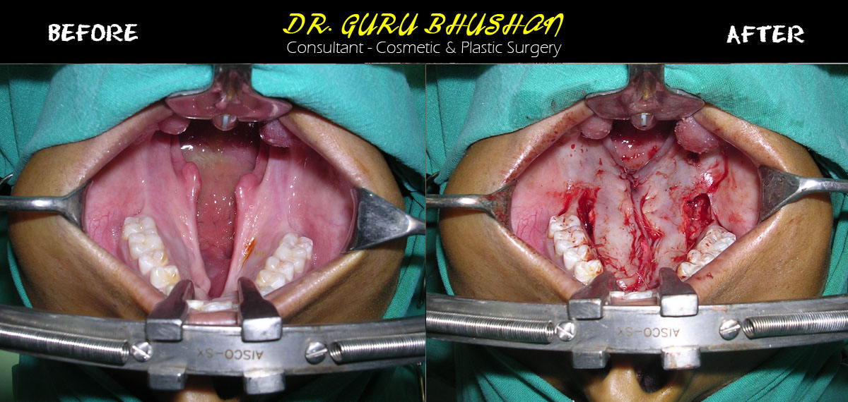 Cleft Lip / Cleft Palate | Dr.GuruBhushan - Consultant - Cosmetic ...