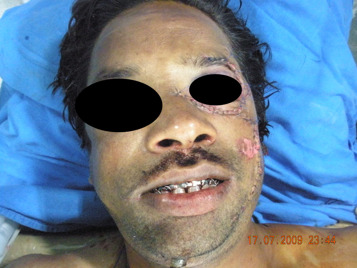 Facial trauma reconstruction share your